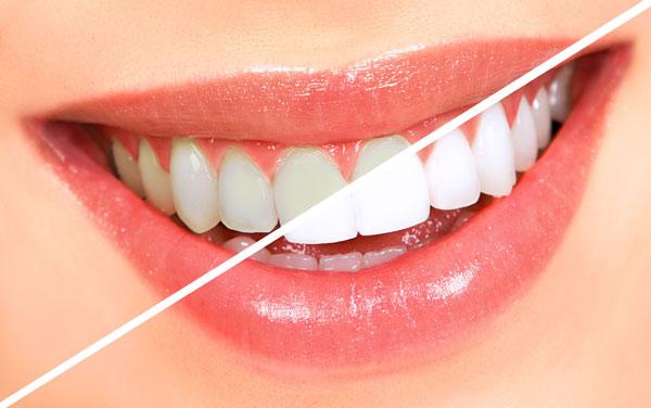 fuquay-varina-dentist-teeth-whitening